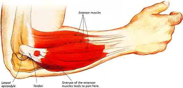 tennis-elbow-newmarket