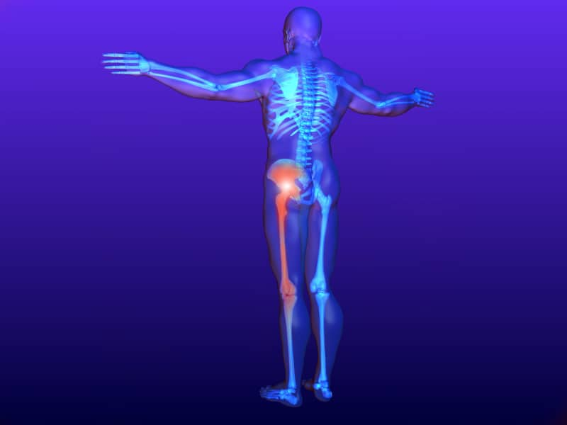 Physio for Sciatic Nerve Pain Newmarket
