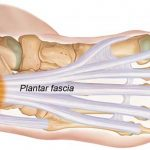 Physiotherapy for Plantar Fasciitis
