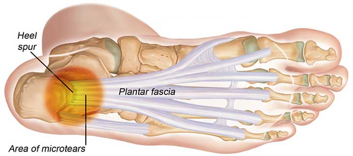 physiotherapy-newmarket-plantars-fasciitis