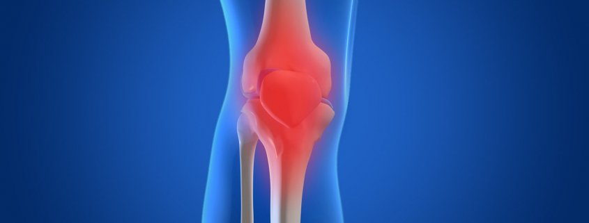 Osteoarthritis Newmarket Physiotherapy